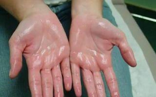 Как избавиться от потливости рук навсегда