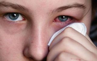 Что делать при конъюктивите: виды конъюнктивита, скорая помощь для снятия симптомов
