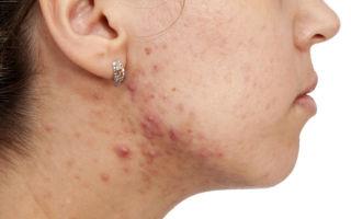 Лечение акне у взрослых: способы избавления от угрей на лице
