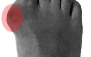 Как лечить шишки на ногах: почему они появляются и как можно избавиться от них в домашних условиях