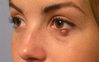 Почему выскакивает ячмень на глазу и какое применять лекарство от ячменя на глазу