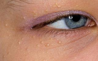 Удаление липомы на лице. Как удалить жировик на лице в домашних условиях