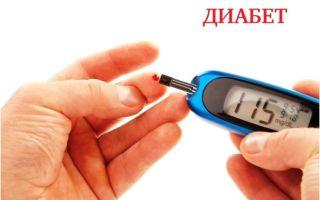 Причины развития диабета: сахарный диабет I и II типа, первые симптомы
