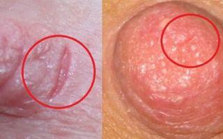 Трещины на сосках при ГВ (грудном вскармливании): профилактика и лечение