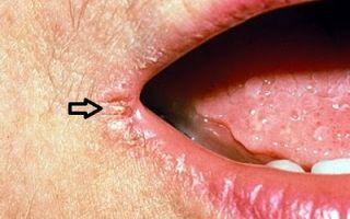 От чего в уголках губ появляются заеды? Чем лечить заеды на губах