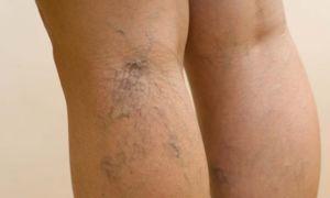 Как убрать сосудистые звездочки на ногах: удаление или лечение? Народные рецепты против телеангиэктазий