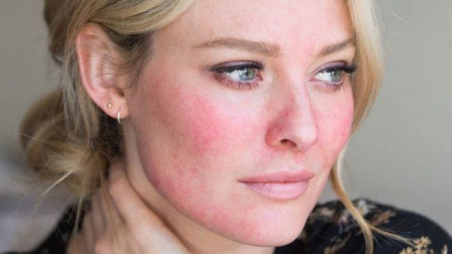 Как избавиться от купероза на лице в домашних условиях