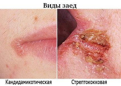 от чего в уголках губ появляются заеды