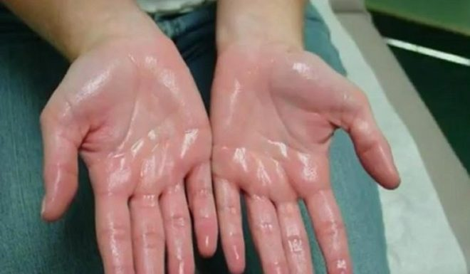как избавиться от повышенной потливости рук навсегда