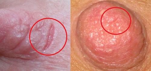 трещины на сосках при грудном вскармливании