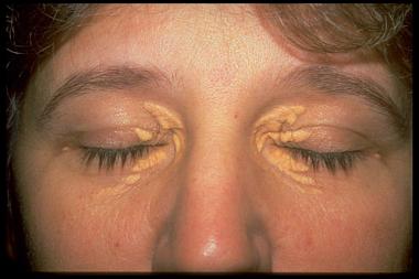 удаление липомы на лице