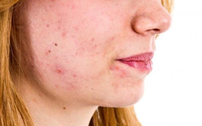 как влияет на кожу нехватка витаминов