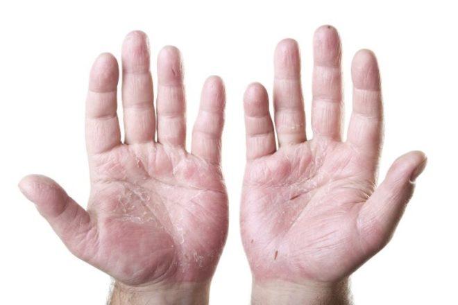 микротрещины на руках
